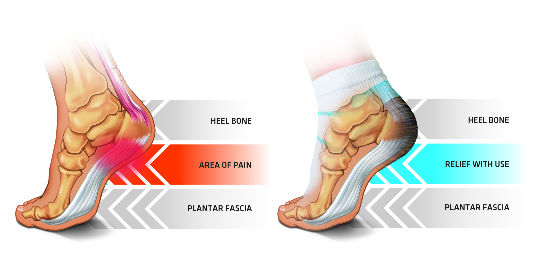 planter infographic better facitis plantarfasciitisinfographic living plantar fasciitis