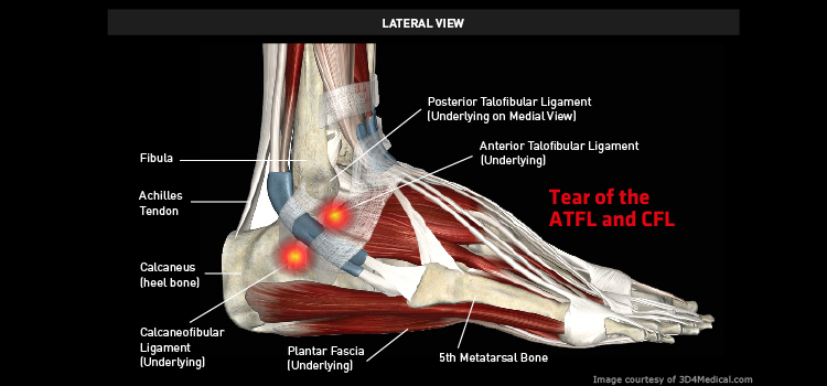 Anatomy: Ankle / Foot - Injury: Tear of the ATFL and CFL Information