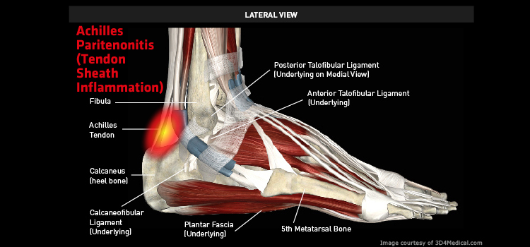 Anatomy: Ankle / Foot - Injury: Achilles Paritenonitis (Tendon Sheath Inflammation) Information