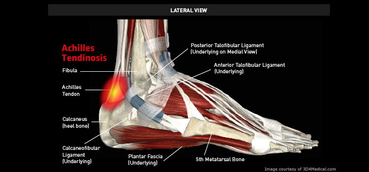 Anatomy: Ankle / Foot - Injury: Achilles Tendinosis Information