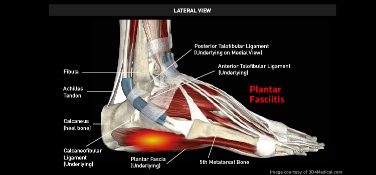 Anatomy: Ankle / Foot - Injury: Plantar Fasciitis Information