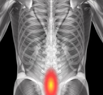 Spondylolysis and Spondylolisthesis