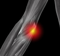Medial Elbow Instability (Rupture or Strain of the Medial Collateral Ligaments)