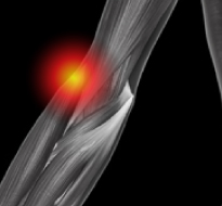 Tennis Elbow (Lateral Epicondylitis, Lateral Elbow Tendinosis)