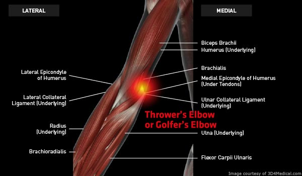 Anatomy: Elbow - Injury: Thrower's Elbow or Golfer's Elbow (Medial Epicondylitis, Medial Elbow Tendinosis) Information
