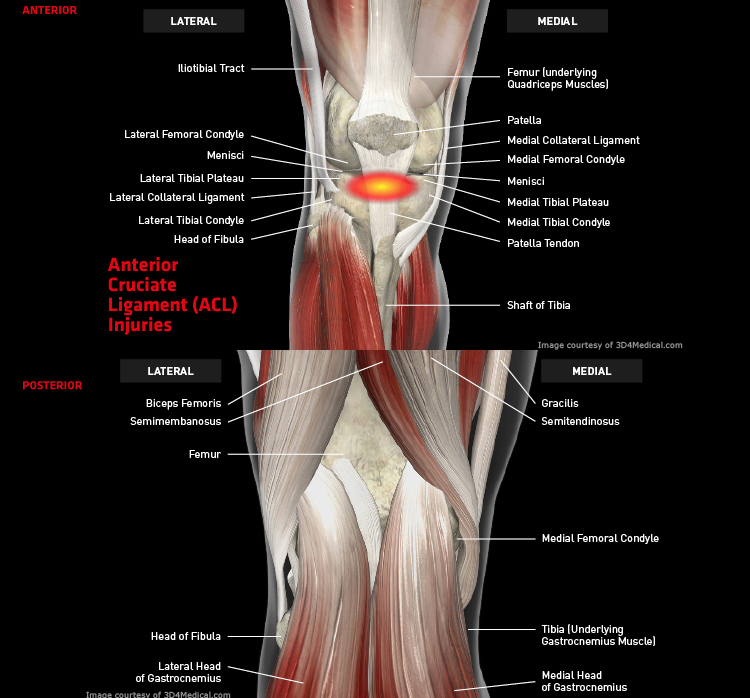 Anatomy: Knee - Injury: Anterior Cruciate Ligament (ACL) Injuries Information