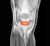 Anterior Cruciate Ligament (ACL) Injuries