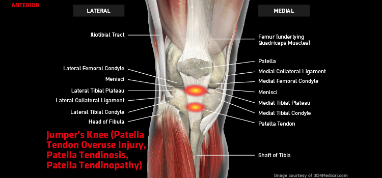 Jumpers Knee Patella Tendon Overuse Injury Patella Tendinosis
