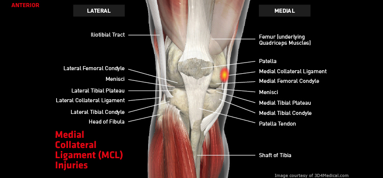 Anatomy: Knee - Injury: Medial Collateral Ligament (MCL) Injuries Information