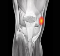 Medial Collateral Ligament (MCL) Injuries Information