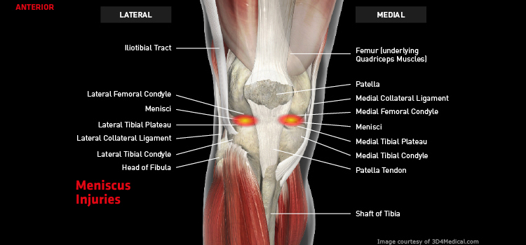 Anatomy: Knee - Injury: Meniscus Injuries Information