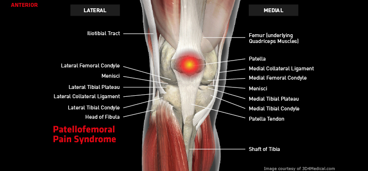Anatomy: Knee - Injury: Patellofemoral Pain Syndrome Information