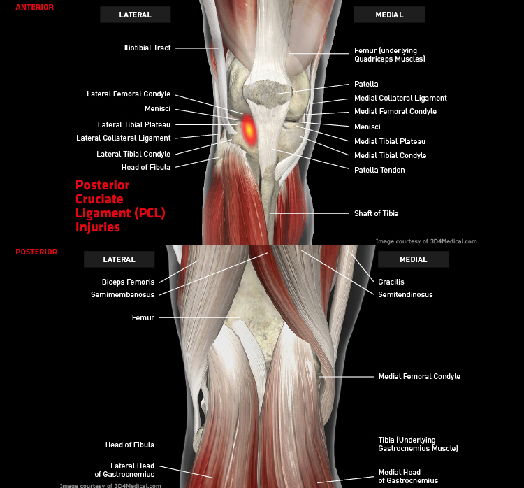 Anatomy: Knee - Injury: Posterior Cruciate Ligament (PCL) Injuries Information