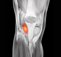 Posterior Cruciate Ligament (PCL) Injuries Information