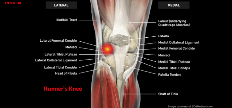 Anatomy: Knee - Injury: Runner's Knee (Iliotibial Band Friction Syndrome) Information