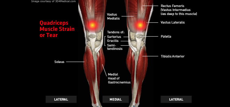 Anatomy: Leg - Injury: Quadriceps Muscle Strain or Tear Information