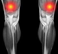 Quadriceps Muscle Strain or Tear