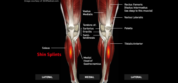 Shin Splints Thermoskin Supports And Braces For Injury And Pain