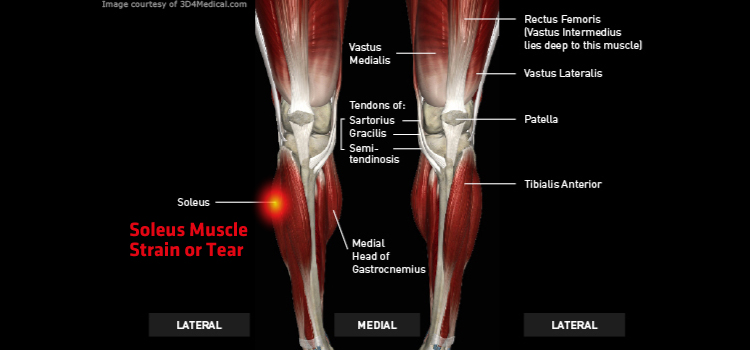 Anatomy: Leg - Injury: Soleus Muscle Strain or Tear Information