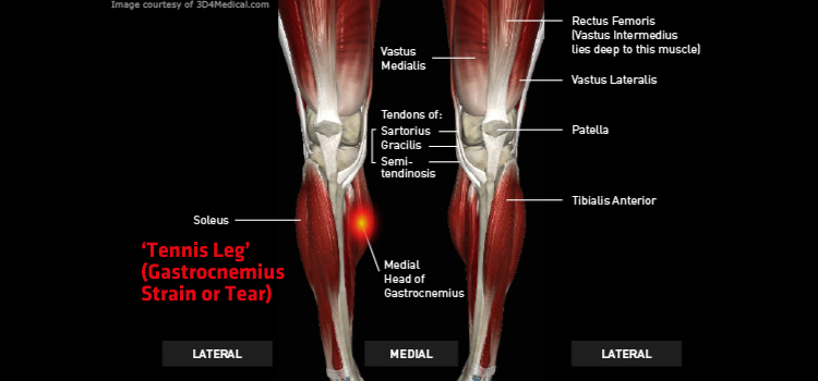 Anatomy: Leg - Injury: Tennis Leg (Gastrocnemius Strain or Tear) Information