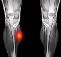 Tennis Leg (Gastrocnemius Strain or Tear) Information