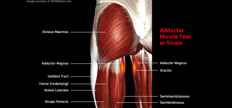 adductor muscle tear or strain – thermoskin – supports and braces, Human Body