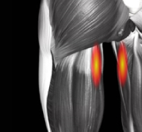 Adductor Muscle Tear or Strain