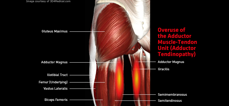 Anatomy: Leg - Injury: Overuse of the Adductor Muscle-Tendon Unit (Adductor Tendinopathy) Information