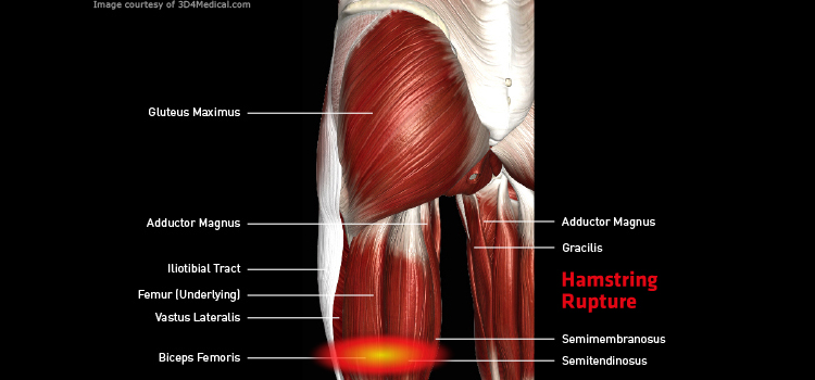 Anatomy: Leg - Injury: Hamstring Rupture Information
