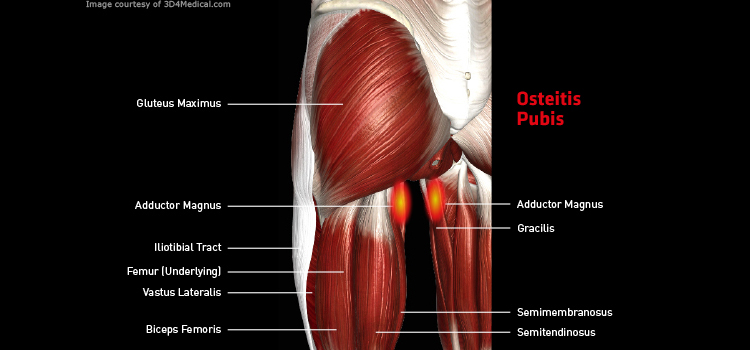 Anatomy: Leg - Injury: Osteitis Pubis Information
