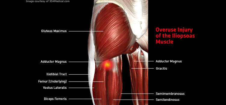 overuse injury of the iliopsoas – thermoskin – supports and braces, Human Body