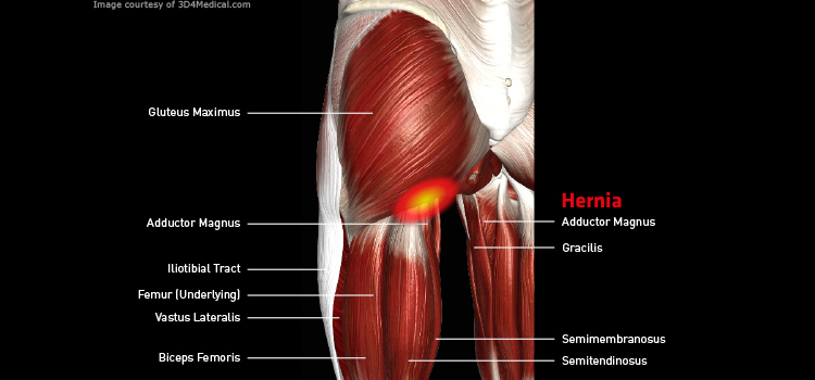 Anatomy: Leg - Injury: Hernia Information