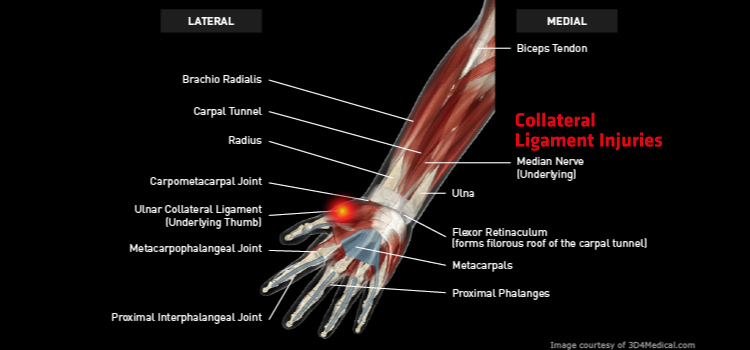 Anatomy: Hand / Wrist / Thumbs - Injury: Collateral Ligament Injuries Information