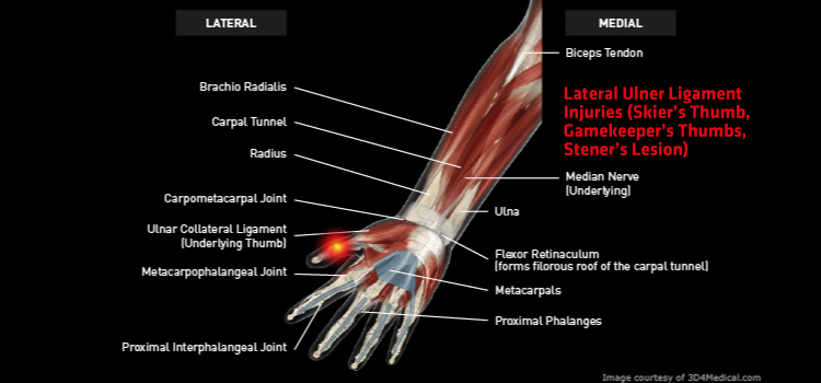 Anatomy: Hand / Wrist / Thumbs - Injury: Lateral Ulner Ligament Injuries (Skier's Thumb, Gamekeeper's Thumbs, Stener's Lesion) Information